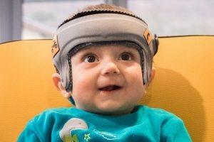image-chabloz-plagiocephalie-image-28