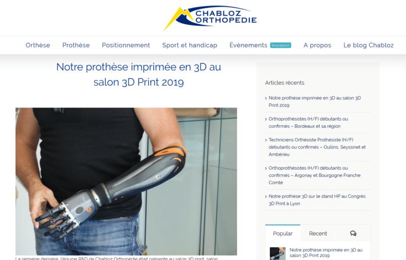 image-prothese-imprime-3d-chabloz
